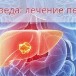 Аюрведа: лечение печени